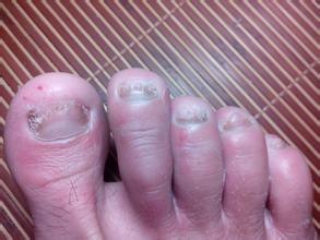 什么原因会造成指甲出现异常?